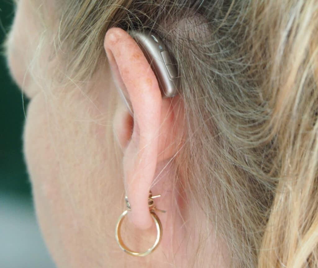 vrouw van achter gefotografeerd met gehoorapparaat